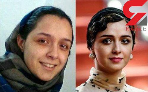 Image result for قبل و بعد از عمل جراحی بازیگران