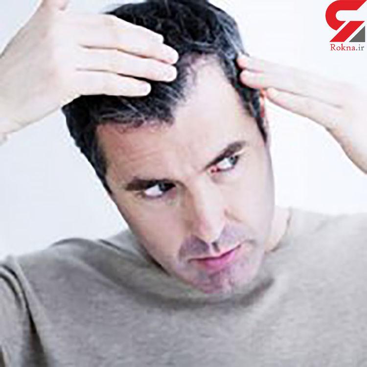 مهم ترین دلایل سفید شدن مو + راه های درمان