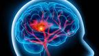 درمان سکته های مرگ آور مغزی محقق شد