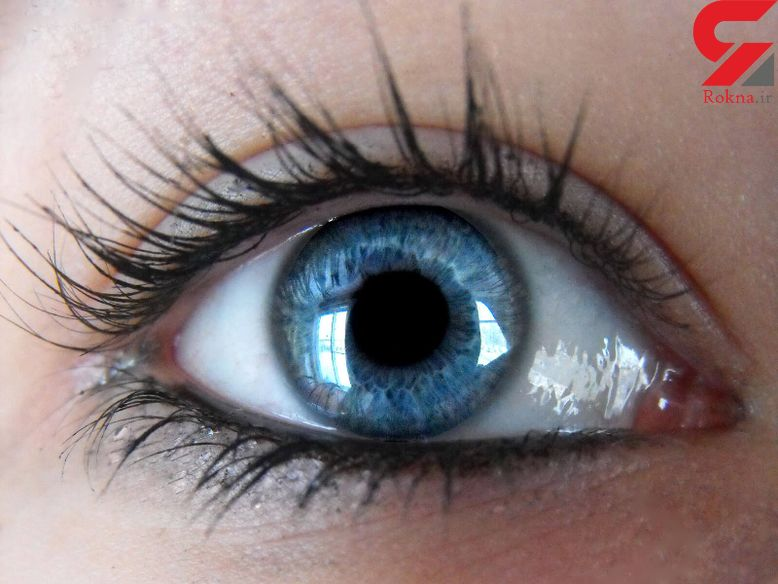 انحراف چشم چه بیماری است