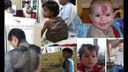عجیب ترین نشانههای مادرزادی وحشتناک در جهان+عکس