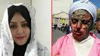 شورای شهر تبریز درمان قربانی اسیدپاشی را تقبل کرد