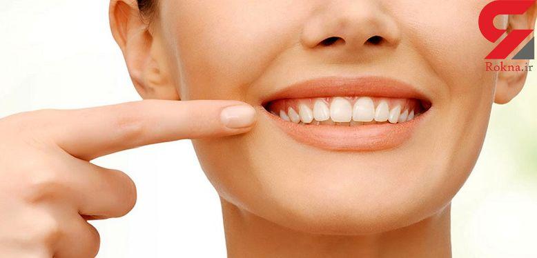 شستن دندان ها با چای سبز چه فوایدی دارد؟