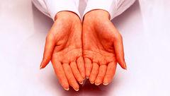 سفید کردن دستها با لوسیون های گران قیمت را فراموش کنید