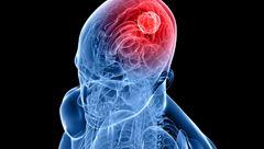 زنگ خطر ابتلا به تومور مغزی را بشناسید