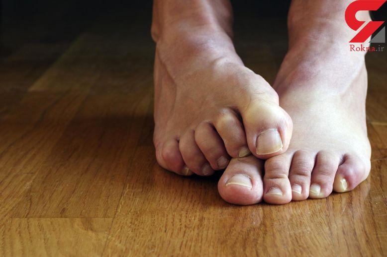 چرا پای برخی مردان بوی بد می دهد؟