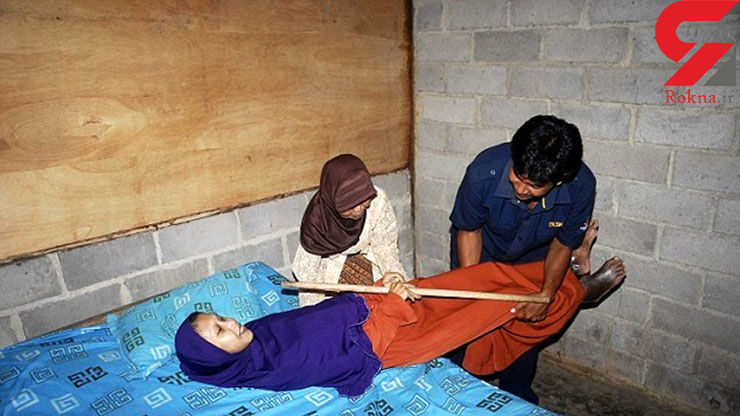 دختر اندونزیایی که چوب شد/ این دختر به پینوکیو شهرت دارد+عکس