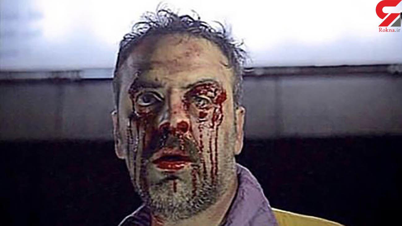 چهره خون آلود و زخمی بهرنگ علوی + عکس