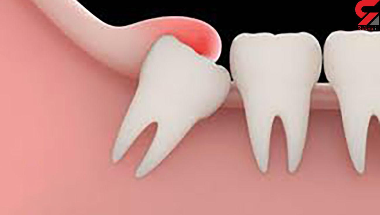 نسخه خانگی برای تسکین درد دندان عقل