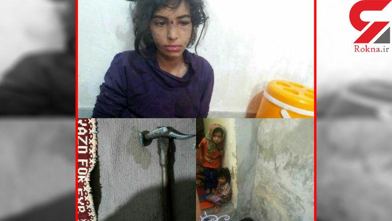 اولین عکس های فجیع از 3 کودک شکنجه شده ماهشهری / نامادری دستگیرشد