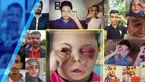 چشم های مظلوم این دختر بچه یمنی دنیا را تکان داد! +فیلم و عکس