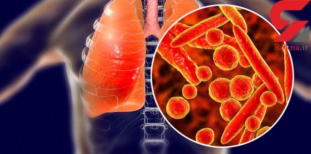 دارویی که مقاومت آنتی بیوتیک ها را افزایش می دهد
