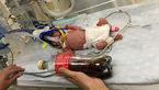تولد نوزادی کوچکتر از شیشه نوشابه+عکس