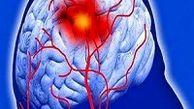 پیشگیری از سکته مغزی با ساده ترین راهکارها