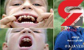 پسربچه ای با 300 دندان هیولایی!+عکس