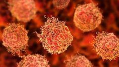 روشی جدید برای تشخیص زودهنگام این سرطان مردانه