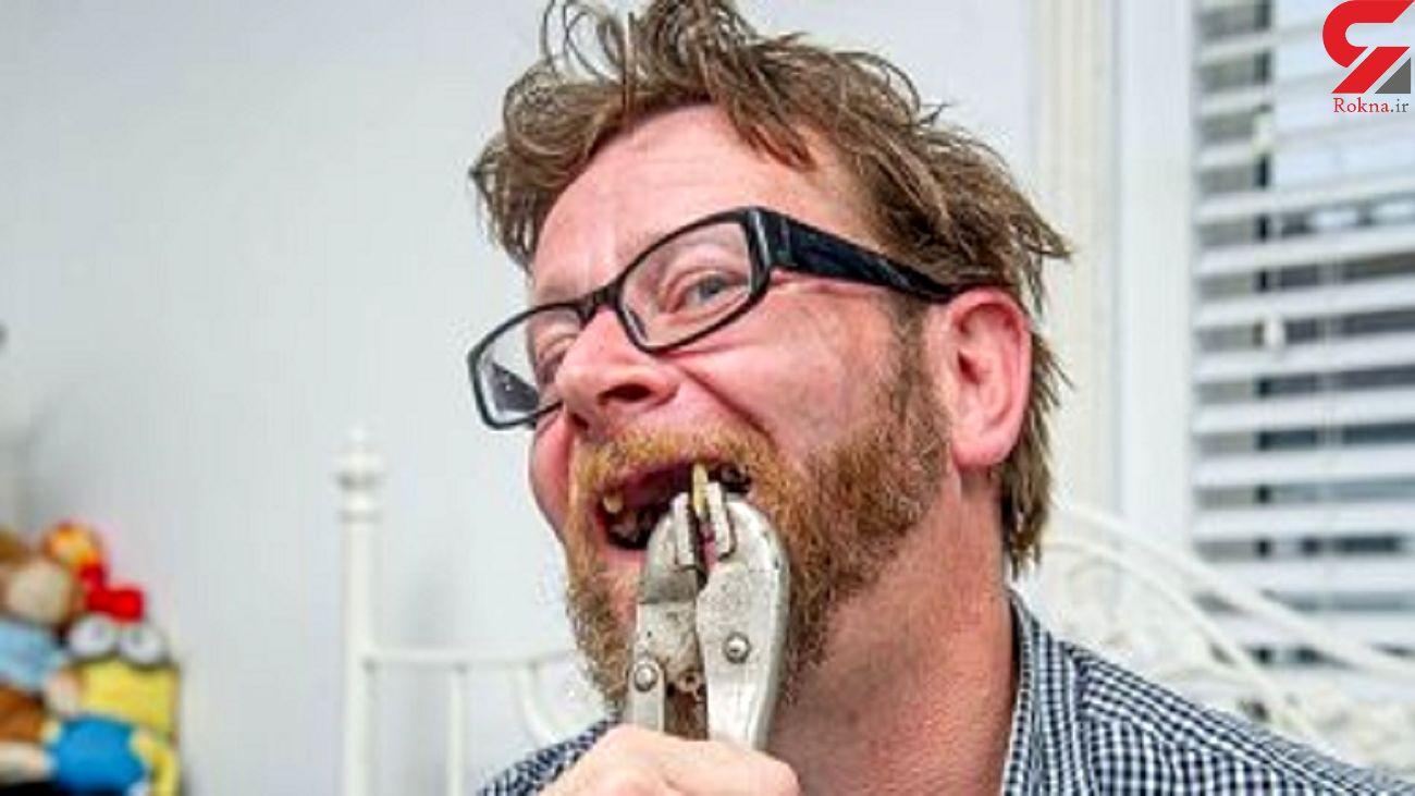 اقدام وحشتناک یک مرد به دلیل بسته بودن مطب دندانپزشک در قرنطینه کرونا