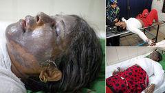 دلیل احمقانه یک مرد در سوزاندن صورت زنش!+ عکس