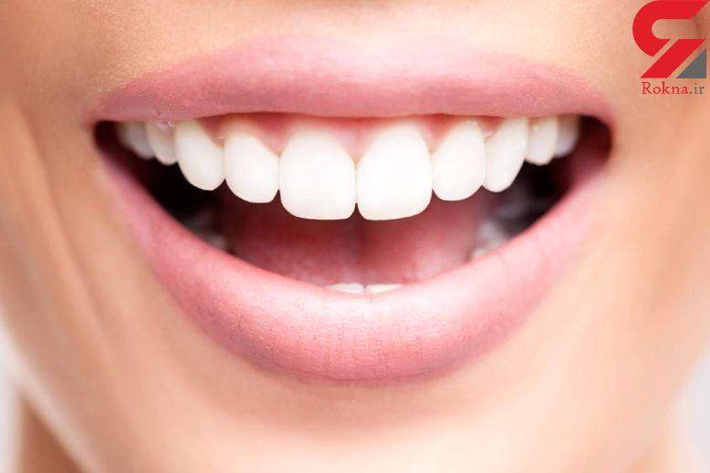 خشکی دهان چه دلایلی دارد؟/بیماری در کمین دیابتی ها!