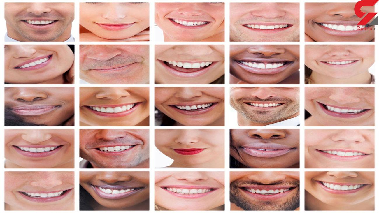 لبخند شما احساسات تان را فاش می کند + عکس