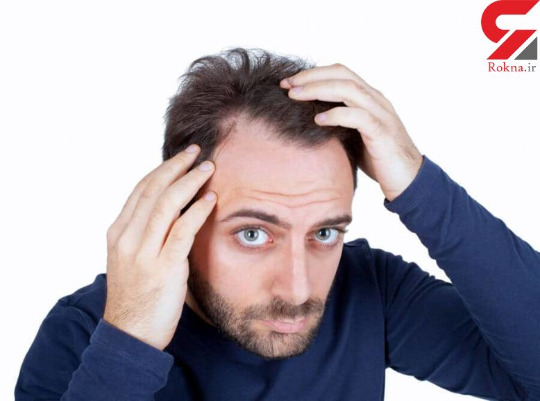مقابله با موهای چرب با ساده ترین تکنیک ها