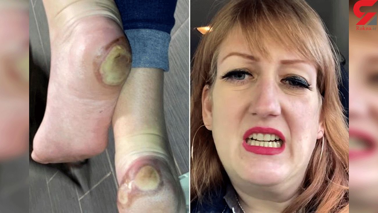 Anti-vaxxers are using a photo of a Covid vaccine trial patient's foot to spread fake news