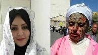آخرین وضعیت پرونده اسیدپاشی به معصومه در تبریز +عکس