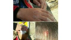 حمله وحشتناک سگ ها ولگرد به یک کودک این بار در حوالی مسکن مهر+عکس