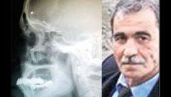 مصطفی 40 سال با گلولهای در مغزش زندگی کرد + عکس باورنکردنی