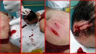 حمله خونین به جوان خرمشهری +عکس 16+