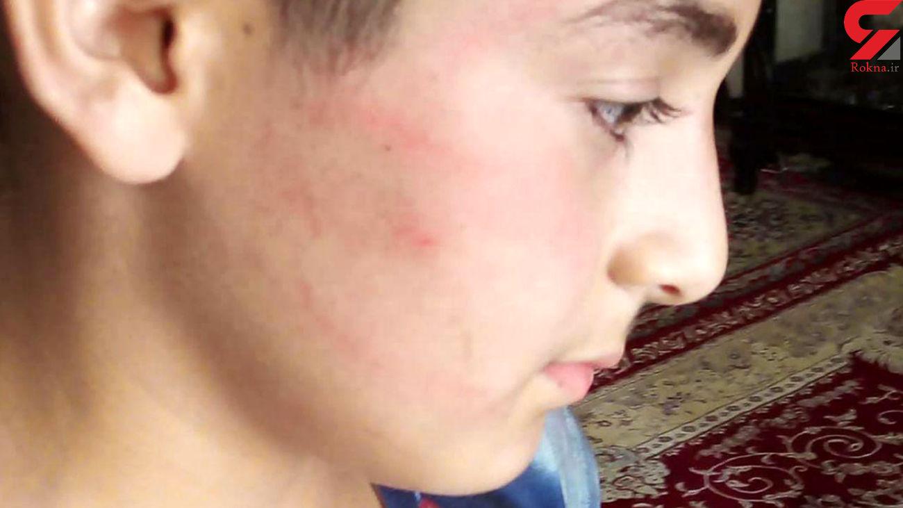 کتک خوردن دانش آموز دبستانی از معلم مدرسه اش در پارس آباد + عکس