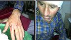 حمله پلنگ وحشی به چوپانی در چناران +عکس