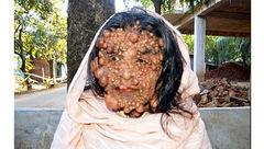 این زن چرا زشت شد! + عکس 16+
