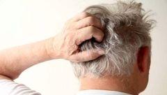 بیماری هایی که عامل خارش پوست سر است
