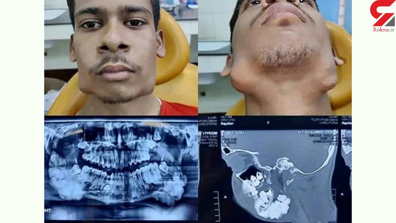 دهان این پسر نوجوان 82 دندان دارد + عکس