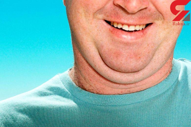 راهکارهای درمانی افتادگی پوست مردان