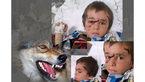 حمله 2 گرگ به 10 کودک روستایی در تبریز / پسر جوان برادر 4 ساله اش را از دندانهای گرگ بیرون کشید+تصاویر مجروحان