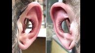 جراحی عجیب زیبایی گوش / این پسر می خواهد فالوورهایش را زیاد کند +عکس