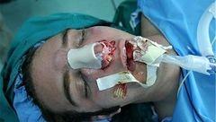 چرا زنان مرتب جراحی زیبایی  میکنند