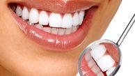 جرم گیری دندان مفید یا مضر؟