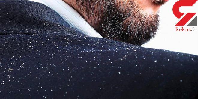 روشهای کنترل و درمان شوره سر مردان