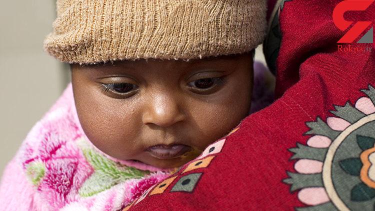 این کودک پاکستانی عجیب الخلقه مغزش در بینی اش رشد میکند + عکس