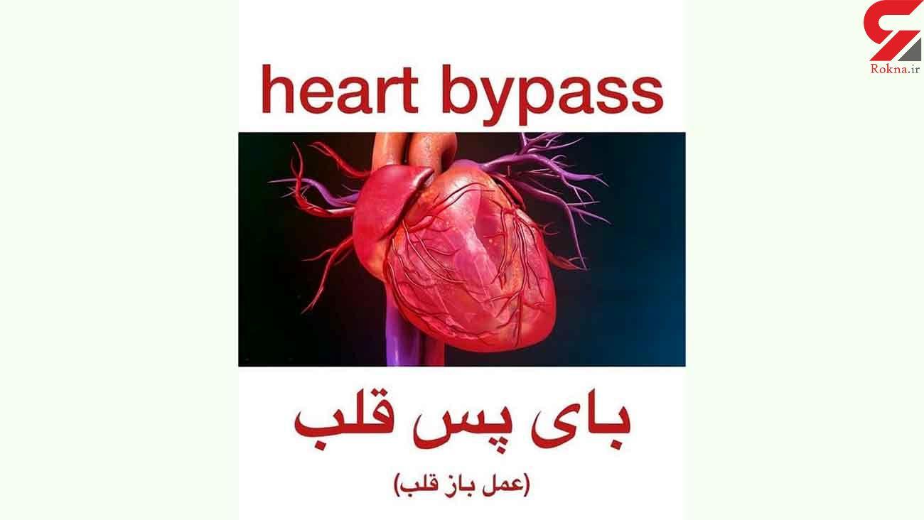 بای پس قلب چیست ؟ / فیلم جراحی قلب را ببینید