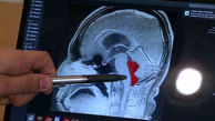 زندگی مرد جوان با یک کرم  در مغزش! + عکس / امریکا
