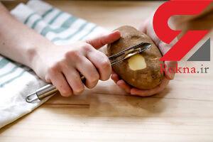 درمان سنگ کلیه با پوست سیب زمینی