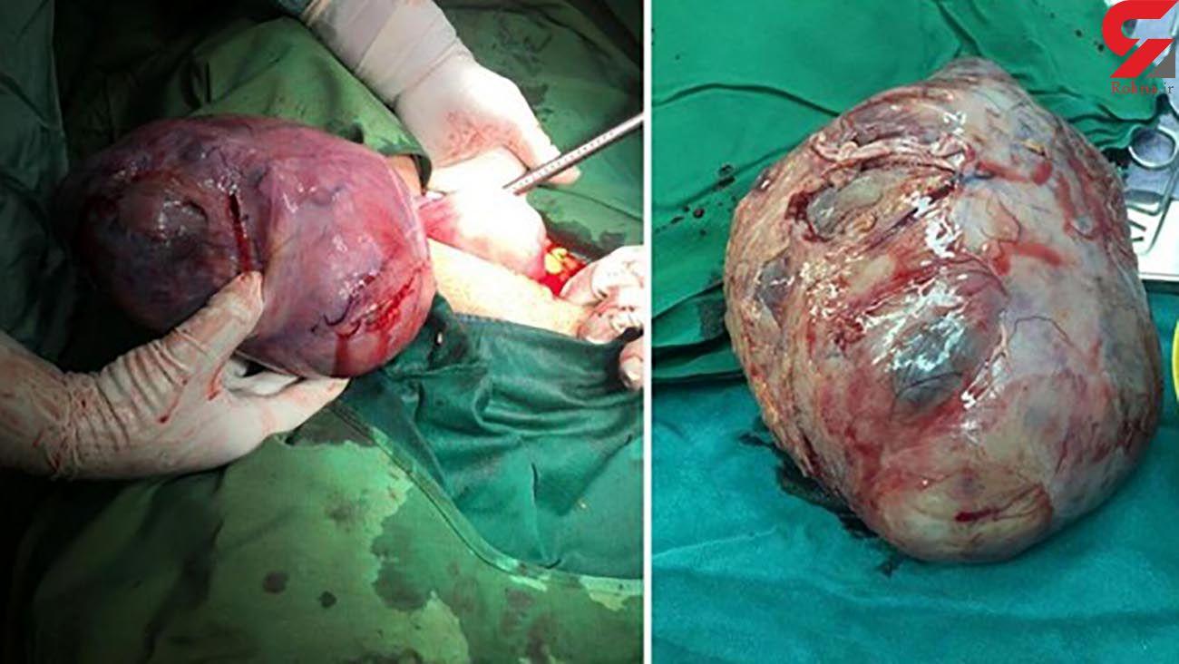 کشفی عجیب در شکم زن جوان قمی / پزشکان شوکه شدند + عکس