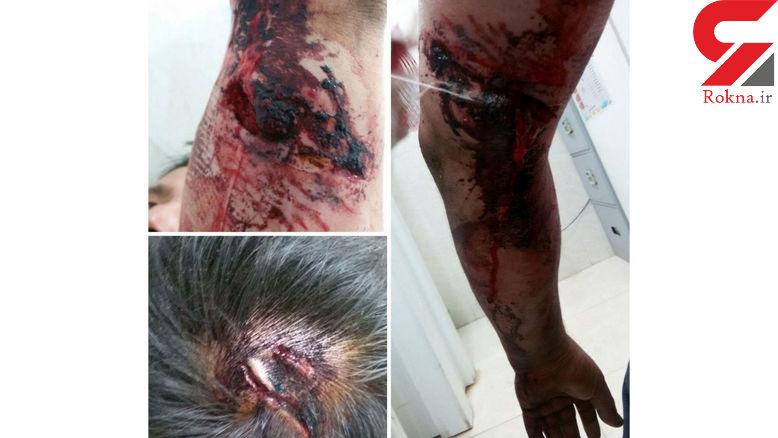 حمله خونین سگ های وحشی به پسرجوان/ در نسیم شهر رخ داد+عکس های تکاندهنده