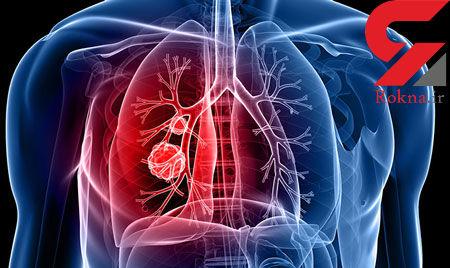 سوئیسی ها داروی درمان سرطان ریه را ساختند