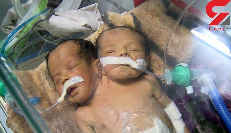 مرگ تلخ دو قلوهای به هم چسبیده / آنها می توانستند زنده بمانند+ عکس