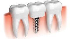 ایمپلنت دندان برای کدام بیماران دیابتی مفید است؟